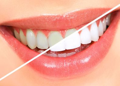 Teeth Whitening Miles City MT