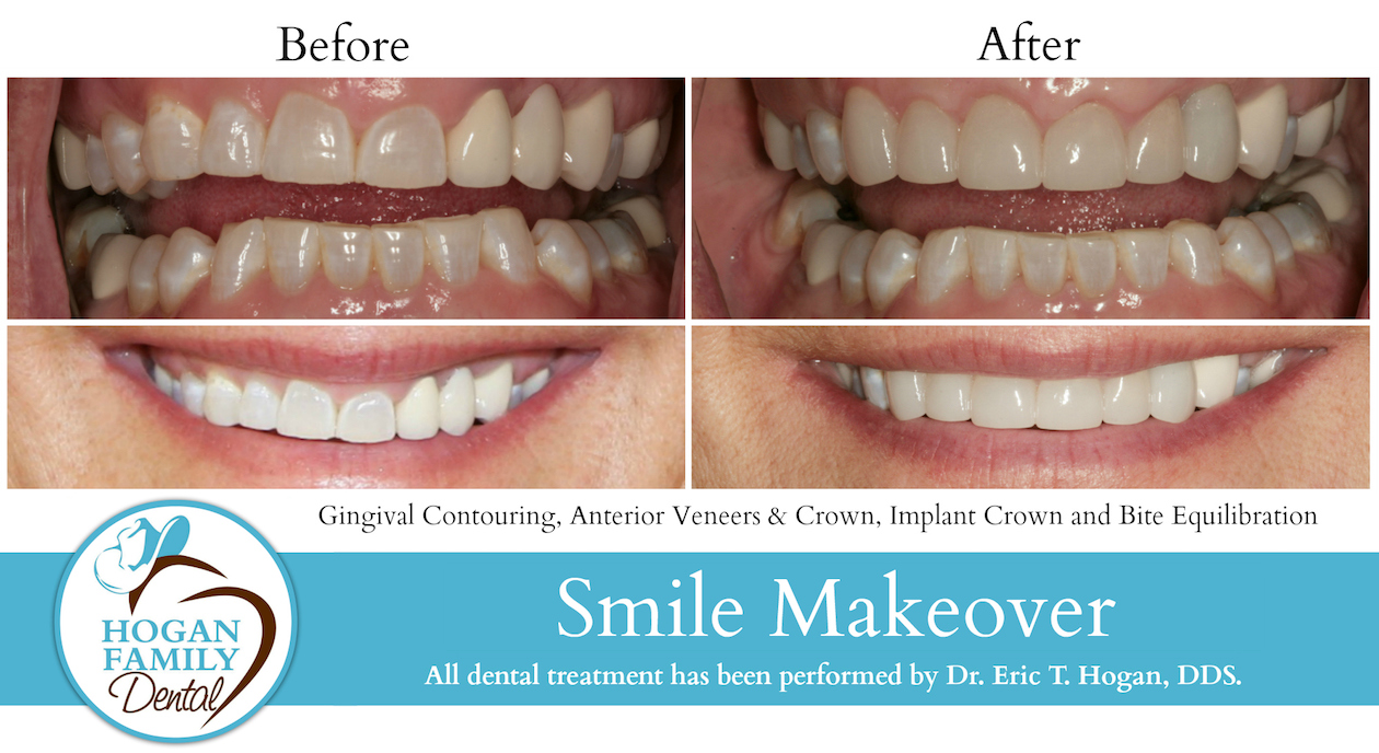 Before and After-Smile Makeover2